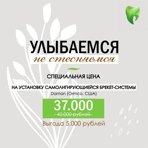 Установка-брекетов-damon