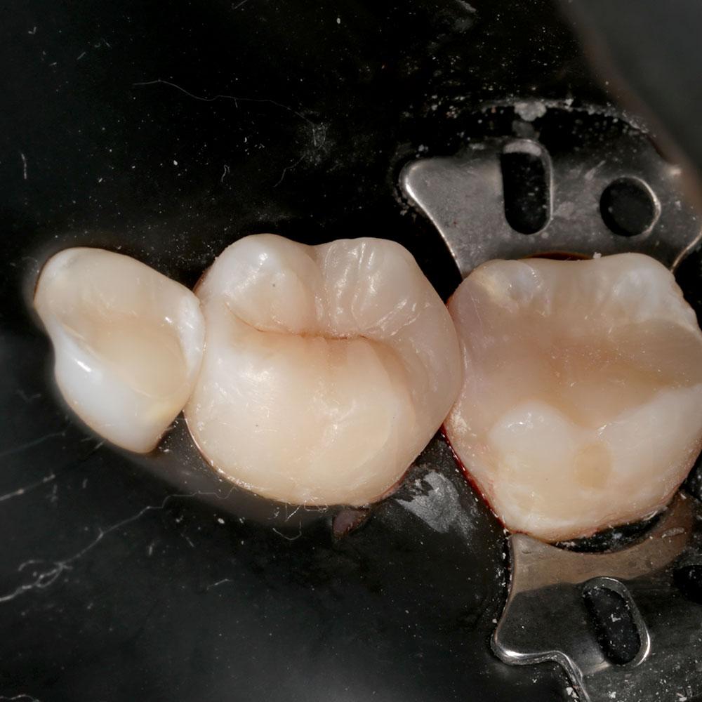 художественная реставрация 36 зуба Сочи