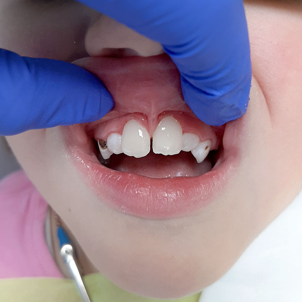Лечение среднего кариеса зубов 11 и 21 у детей Сочи